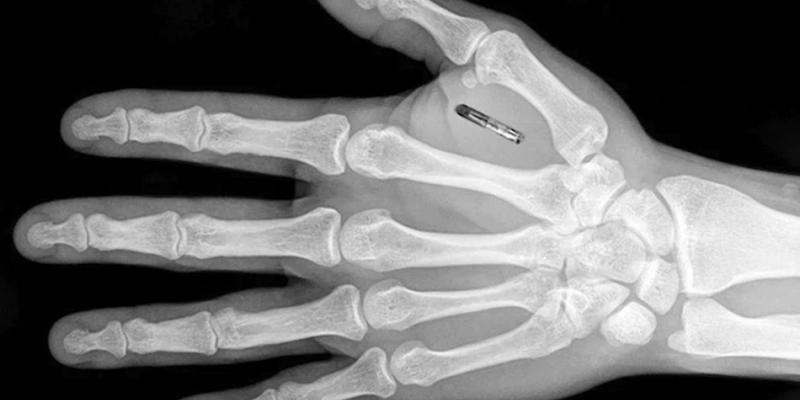 Implante Humano
